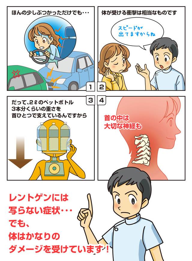 漫画で見る「むち打ち症」